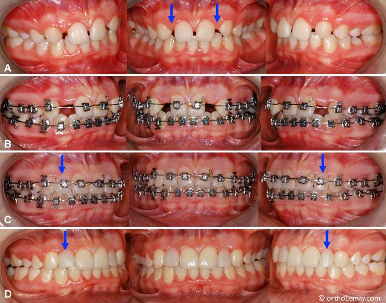 Anodontie-ouverture-espace-incisives-latérales-orthodontie