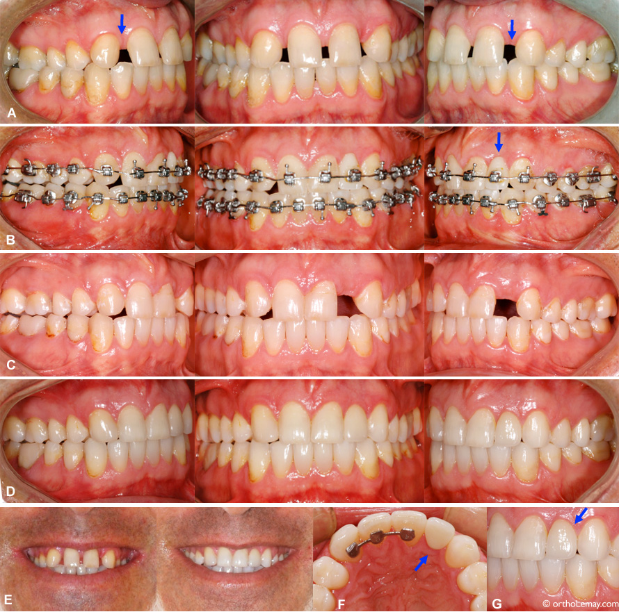 anodontie-orthodontie-ouverture-espace-cote-remplacement-prothese
