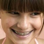contention orthodontique