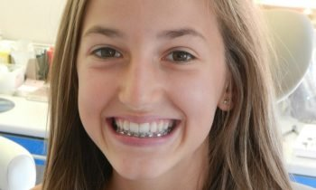 Entretien appareil dentaire