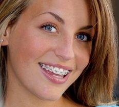 innovation orthodontie