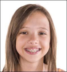 enfant et orthodontiste