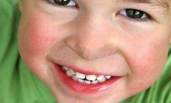 sourire dents avants