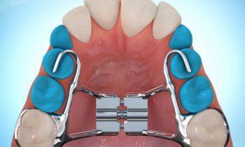 Disjoncteur en orthodontie