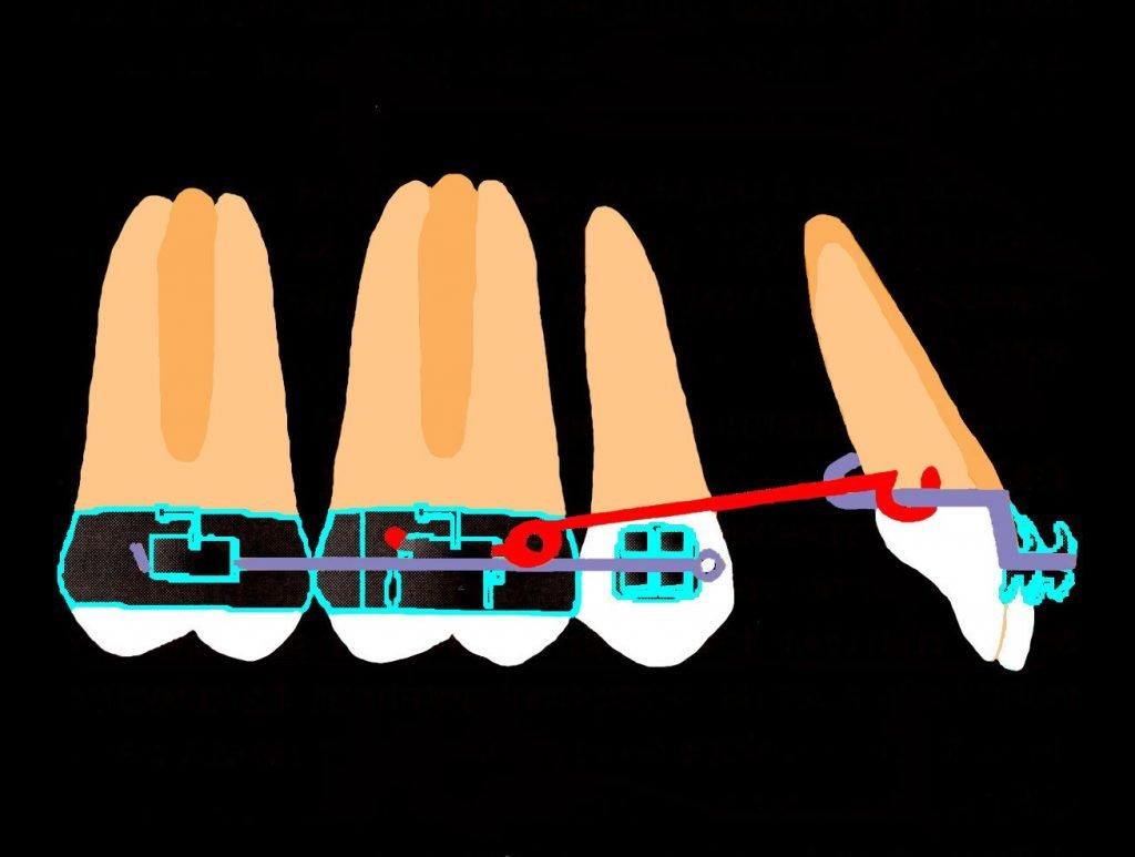 Biomecanique de déplacement dentaire chez l'adulte 02