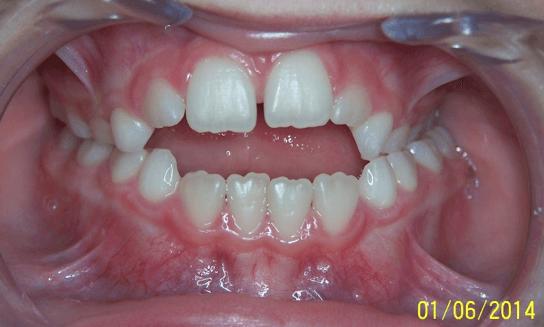 17-dents