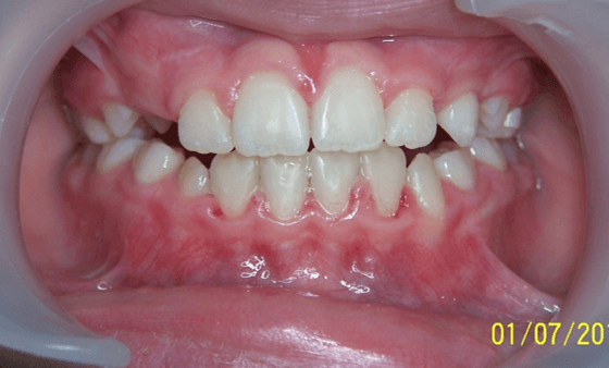 19-dents