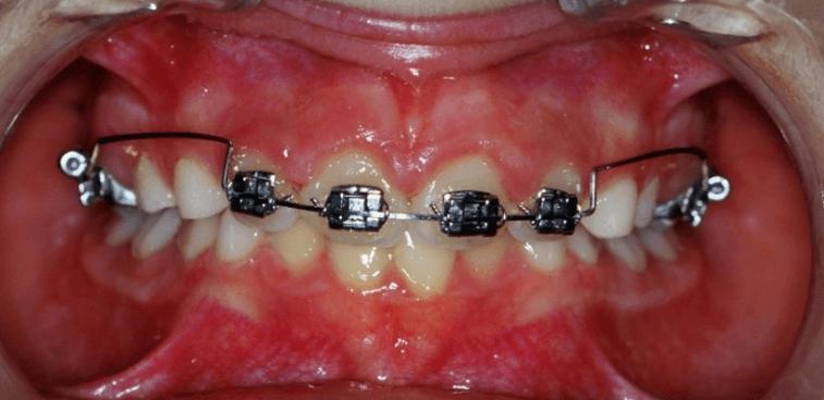 21-dents-+-arc
