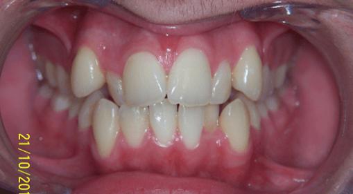 28-dents