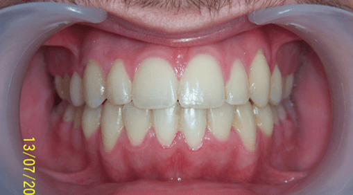 29-dents