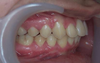 33-dents