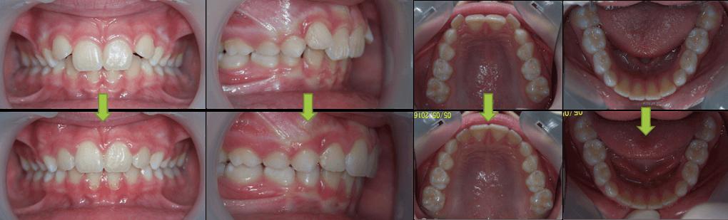 51-dents-cas