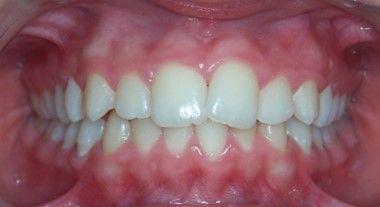 61-dents