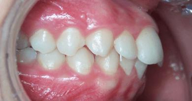 62-dents