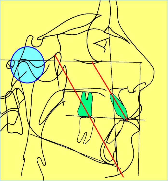 73-tracé