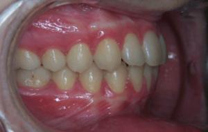 74-dents