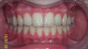 75-dents