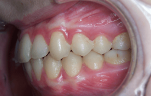 76-dents