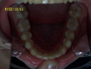 78-dents