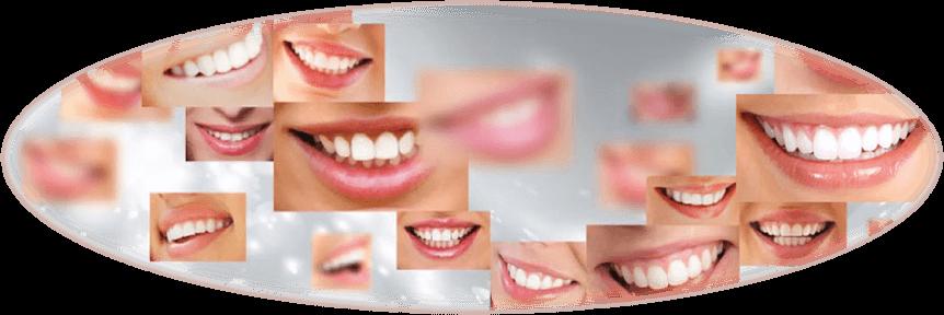 80-sourires