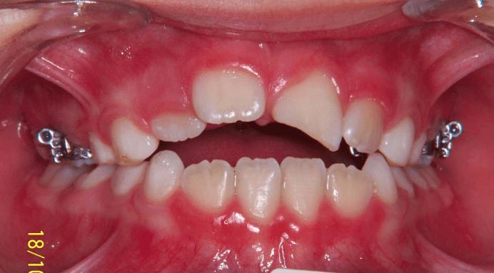 82-dents-C